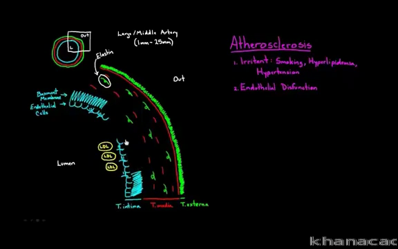 Arteries Vs Veins Whats The Difference Video Khan Academy