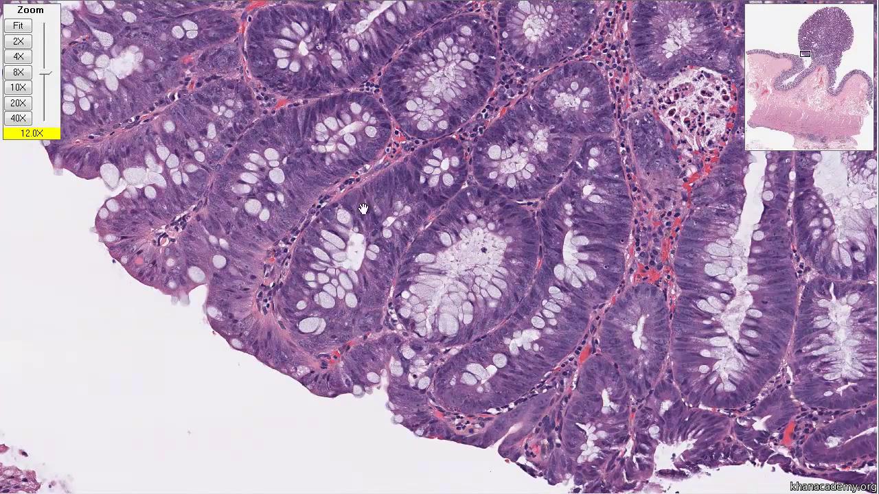 Normal Colon Tissue Video Colon Diseases Khan Academy