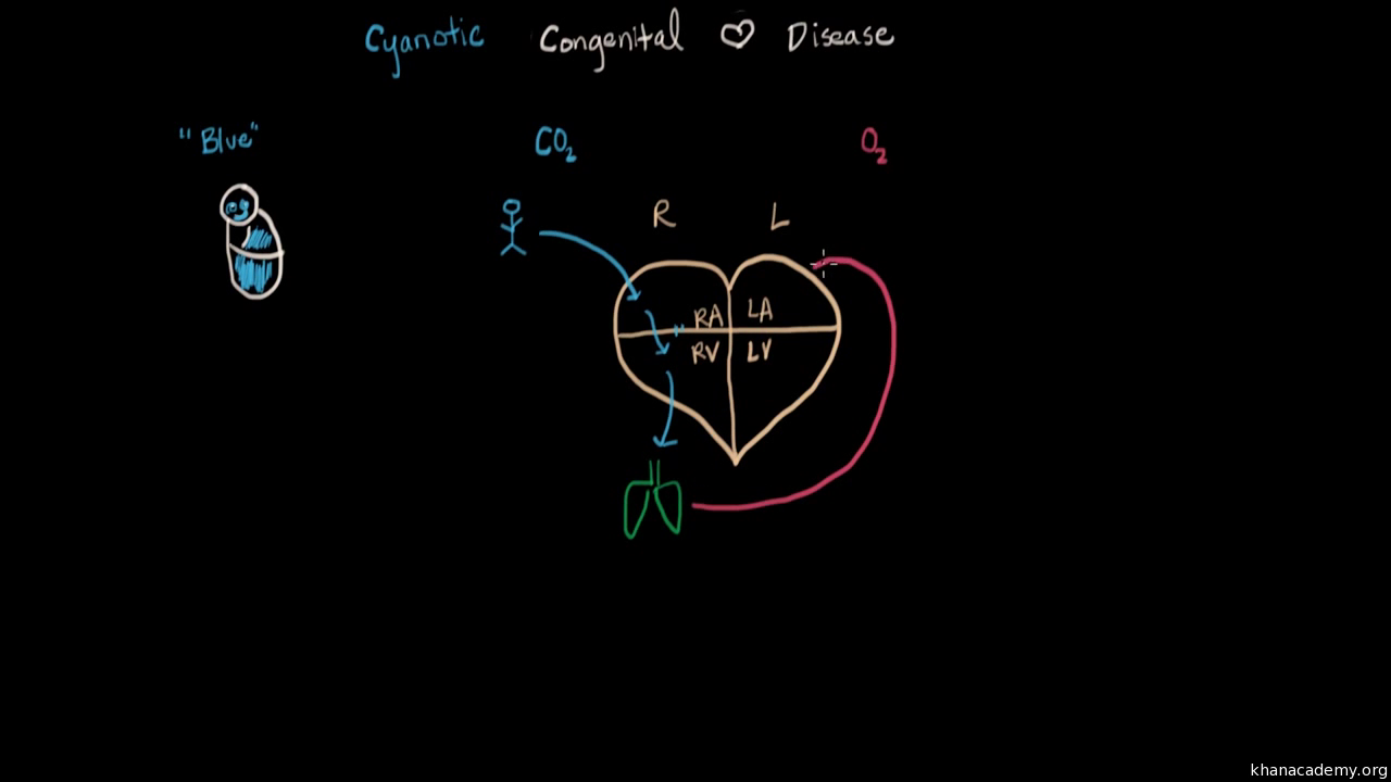 Shunting In The Heart Video Khan Academy Diagram Click For Details Show Me A Of Human