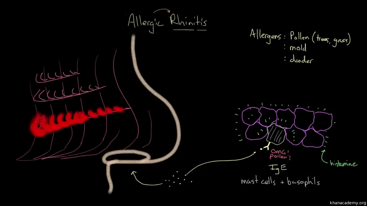 allergic rhinitis diagnosis and treatment (video) | khan academy