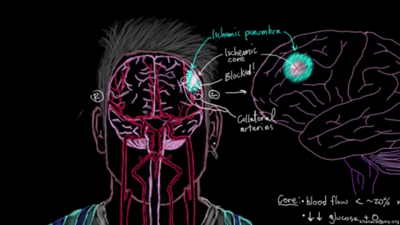 Diagnosing strokes with imaging CT, MRI, and Angiography (video ...