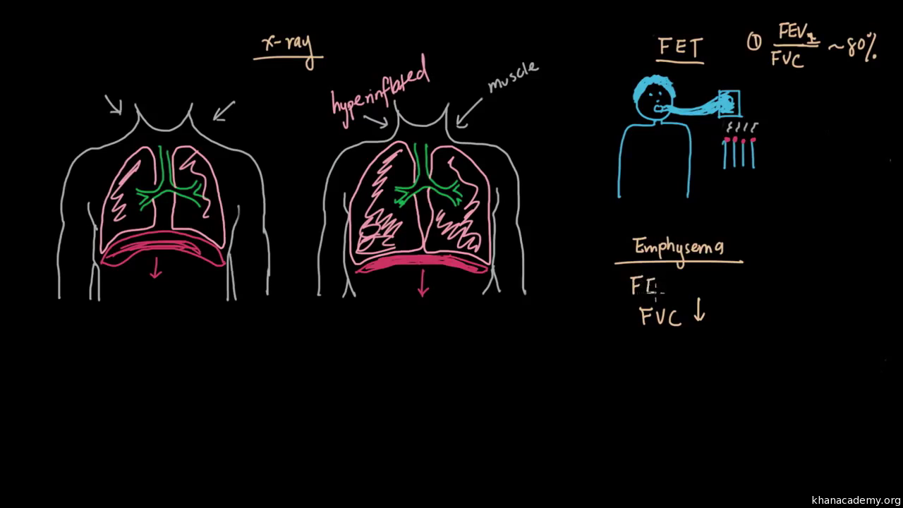 What is emphysema? (video) | Khan Academy