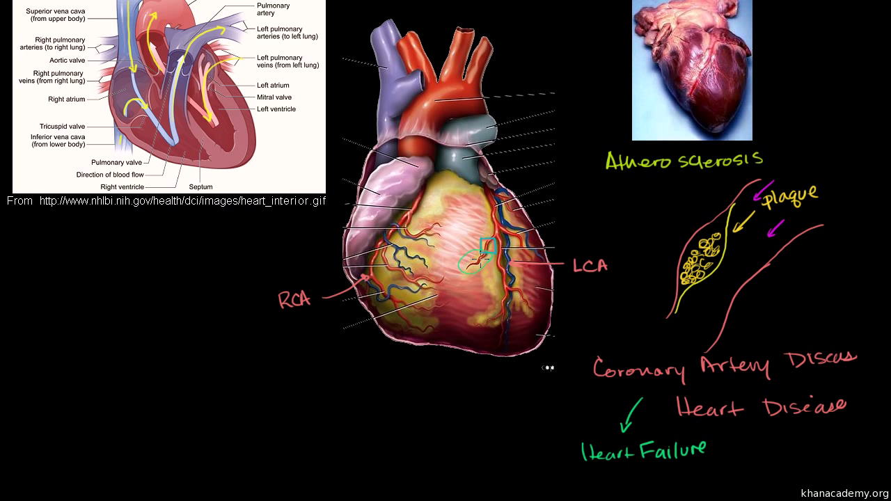 Heart Disease And Attacks Video Khan Academy This Diagram Shows The Muscles In
