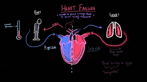 What is heart failure?