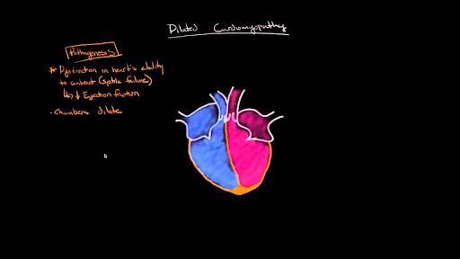 Dilated cardiomyopathy: Pathophysiology and diagnosis