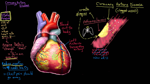 What Is Coronary Artery Disease Video Khan Academy