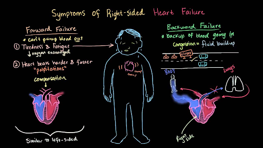 Circulatory system diseases | Health and medicine | Science | Khan Academy