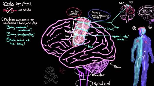 Ischemic stroke (video) | Stroke | Khan Academy