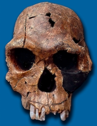 Picture of a _Homo habilis_ skull on a blue background. Skull is missing two of its front teeth.