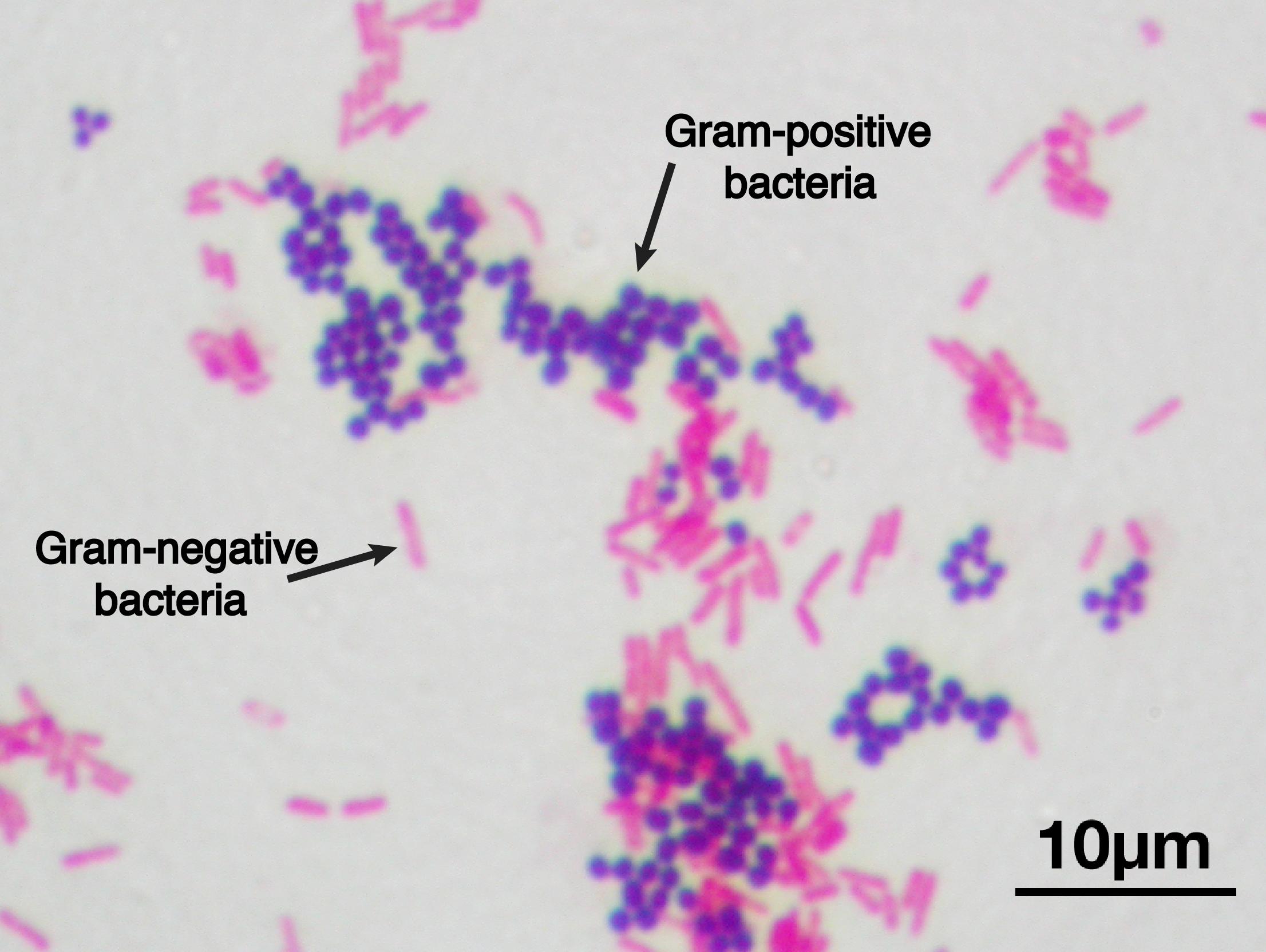 Prokaryote structure (article) | Khan Academy