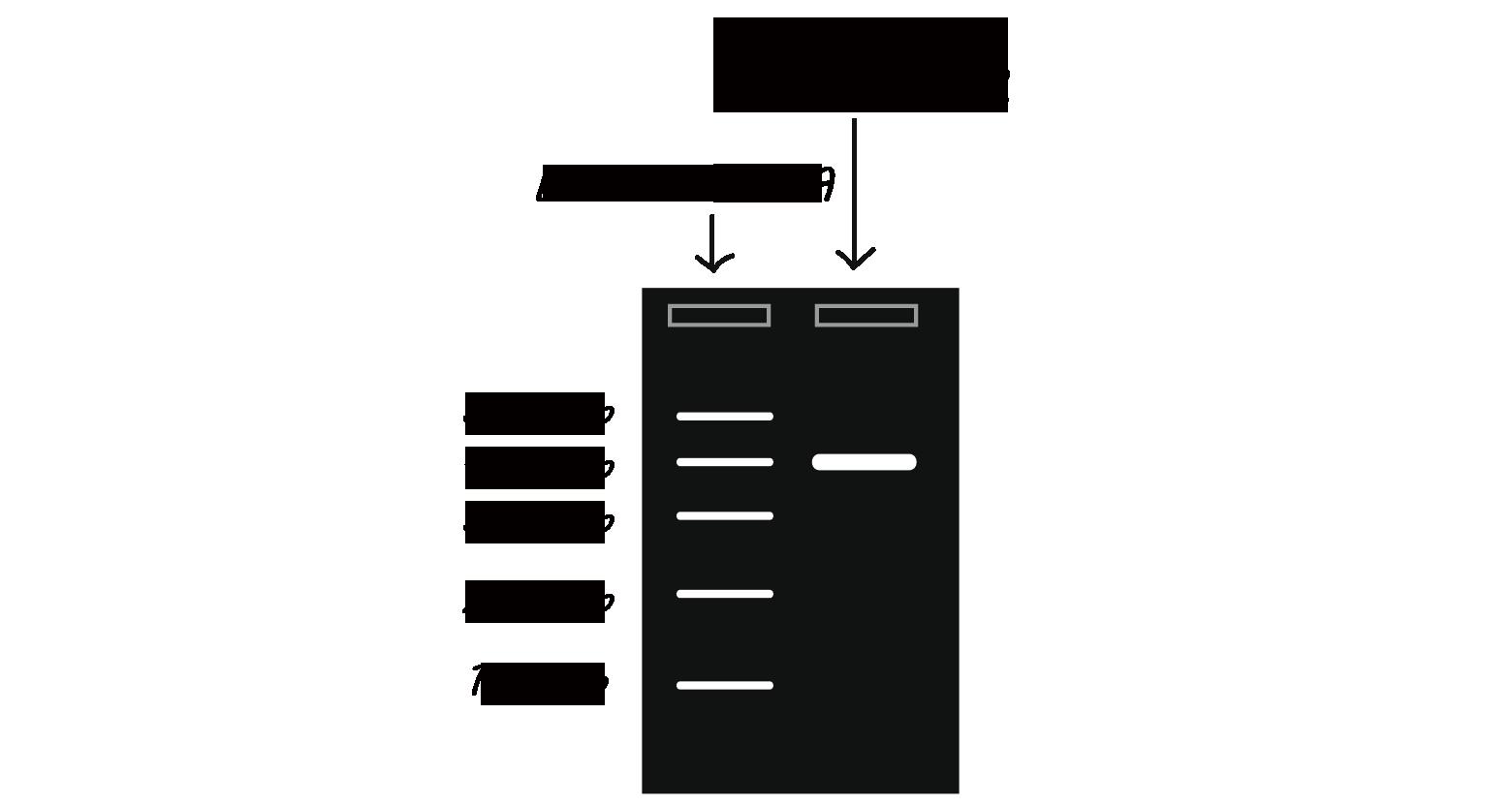 Coluna esquerda: Escada de DNA com bandas de 100, 200, 300, 400, 500 pb.  Coluna direita: resultado da reação PCR, uma banda em 400pb.