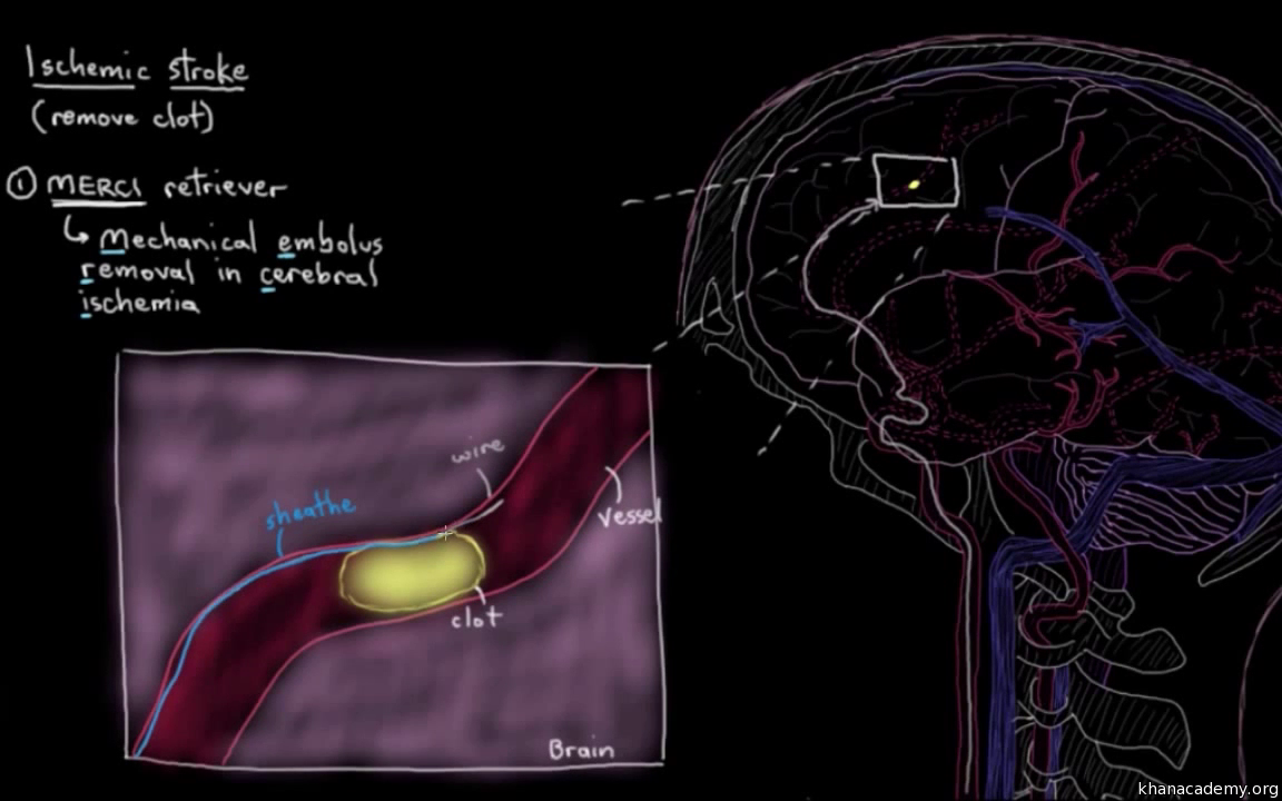 Treatment of stroke with interventions (video) | Khan Academy