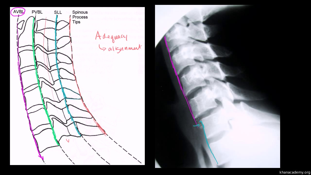 Assessing Alignment Of The Lateral Cervical Spine Neck X Ray