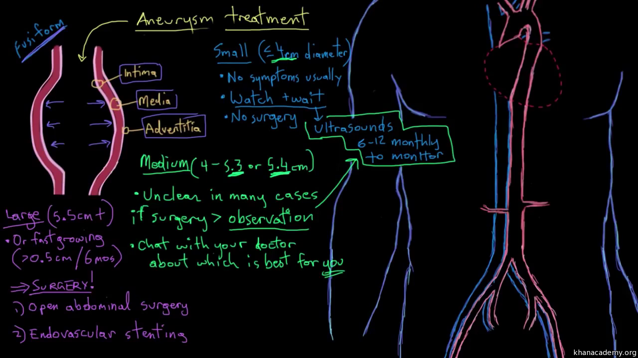 Circulatory system diseases | Health and medicine | Science