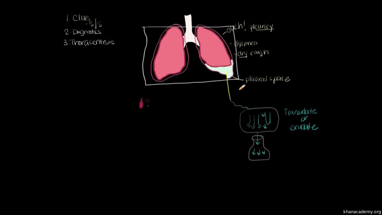 Pleural effusion diagnosis and treatment (video)   Khan Academy