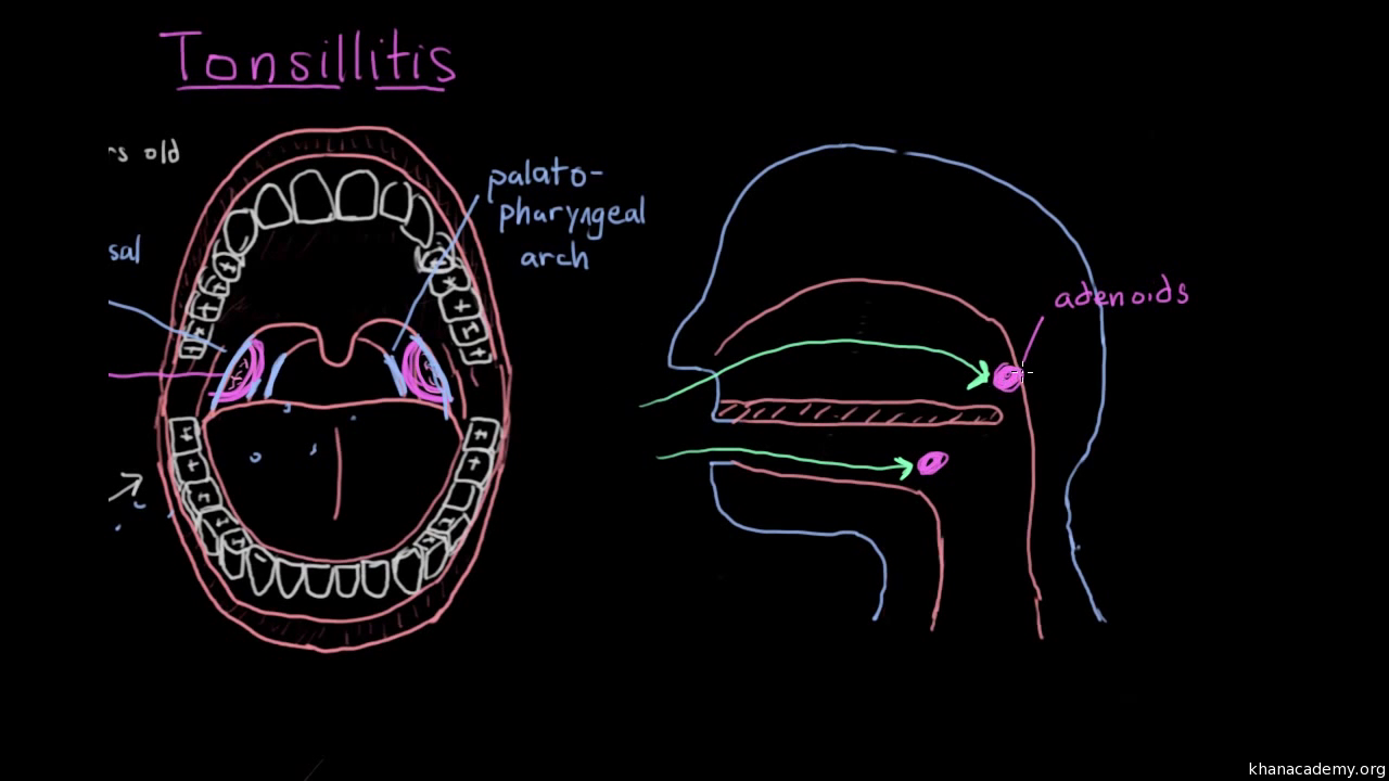 Tonsillitis (video) | Throat conditions | Khan Academy