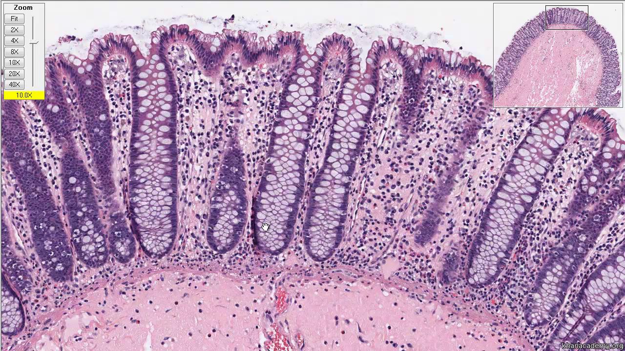 cancer de colon histologia medicamente pentru vierme pentru koshe