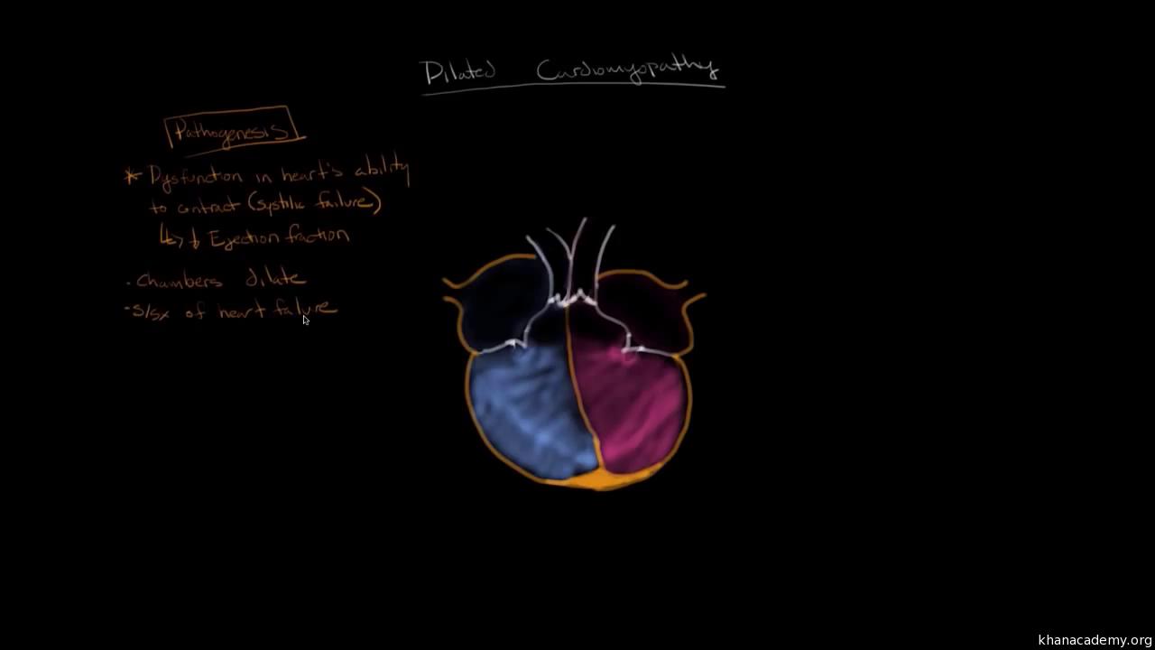 Dilated cardiomyopathy: Pathophysiology and diagnosis (video) | Khan
